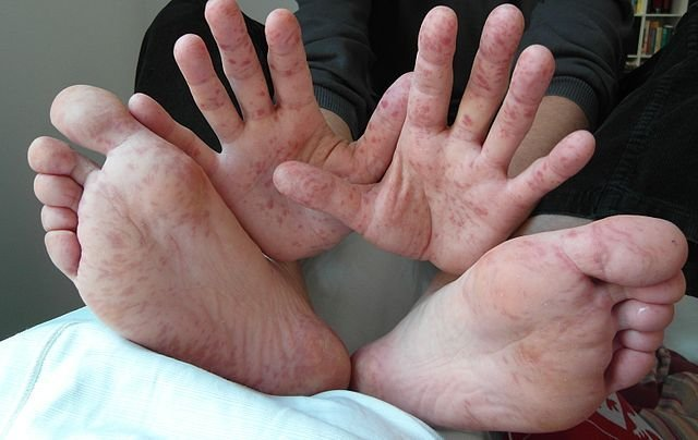 Hand, Foot And Mouth Disease In Children: Causes, Symptoms And Treatment