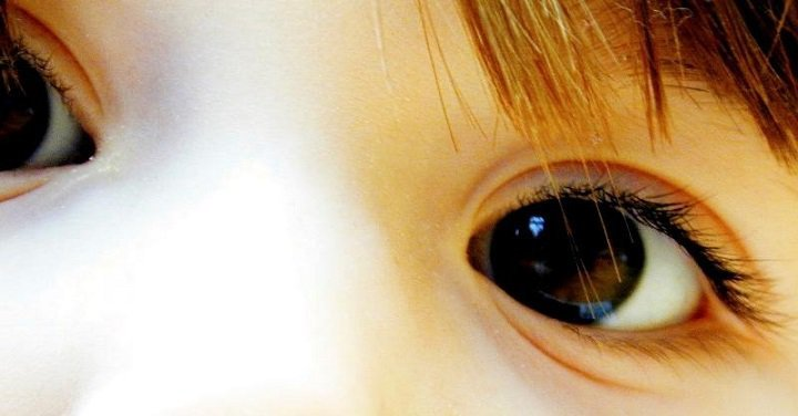 Beware Of Lazy Eye Syndrome In Children